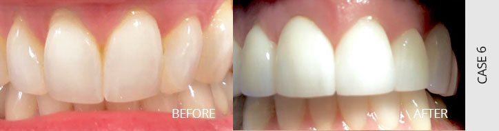 Before After Case O6