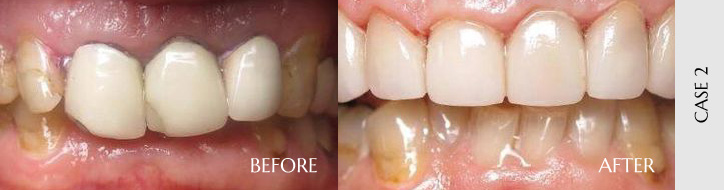 Before After Case 02