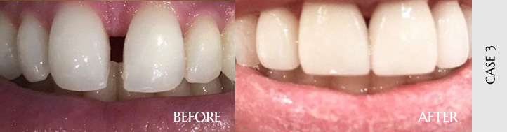 Before After Case 03