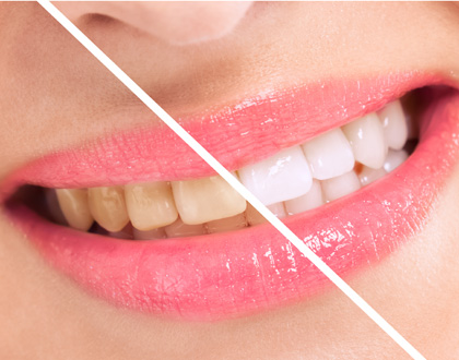 Woman perfect whiten teeth