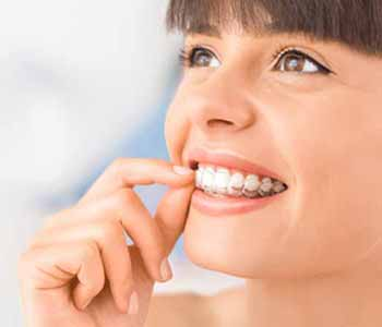 At AZ Dental Wellness of Scottsdale, we believe that all our patients should benefit from a beautiful, straight smile.