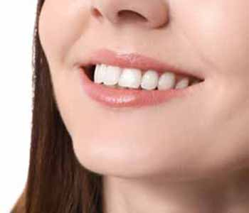 Image of a Young lady showing her straighter teeth
