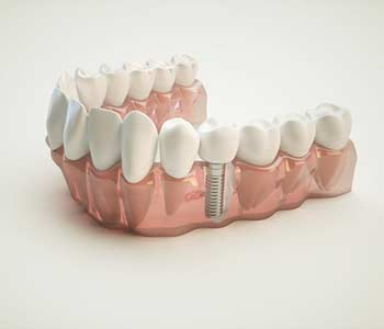Dental implants restore missing teeth for Scottsdale, AZ patients