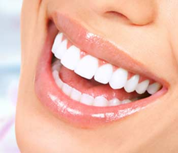 Professional teeth whitening with Scottsdale, AZ dentist can brighten your smile