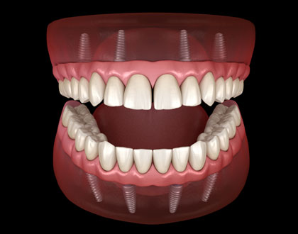 All on Four Dental Implants Scottsdale AZ