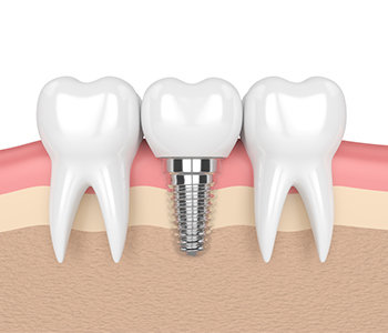 Scottsdale, AZ dentist explains how all on four dental implants can change your life!