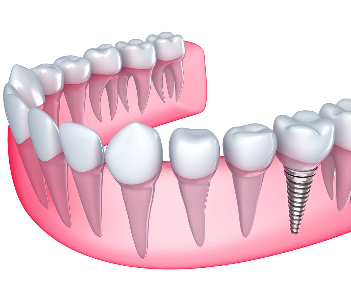 Where Can I Find a Dentist, Who Specializes in Dental Implants near Scottsdale, AZ?