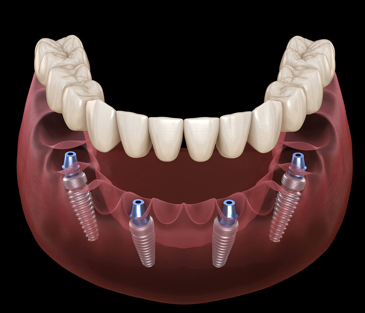 The Benefits Patients Are Reaping from All on Four Dental Implants in Mesa AZ is Astounding!