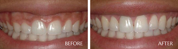 Crown Before After Results