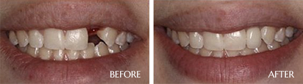 Dental Implants Before After Results