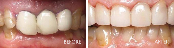 Broken Crowns/Large Fillings Before After Results