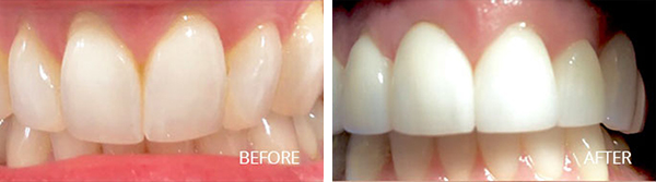 Straightening Teeth - Before After Results