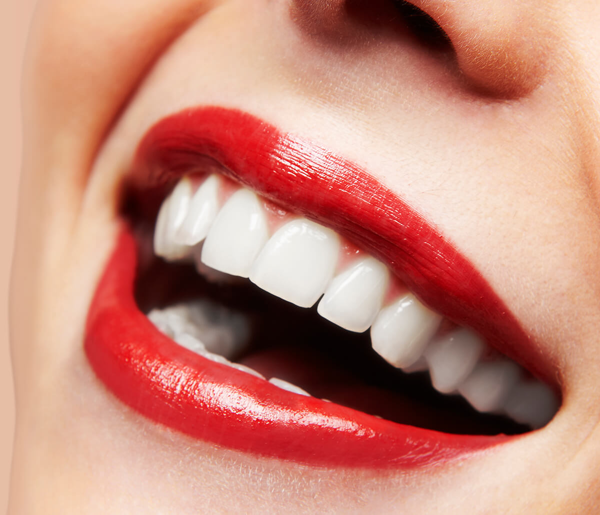 Parents in Scottsdale Seeking Answers on If Dental Veneers for Teens Are Suitable and Worth the Cost