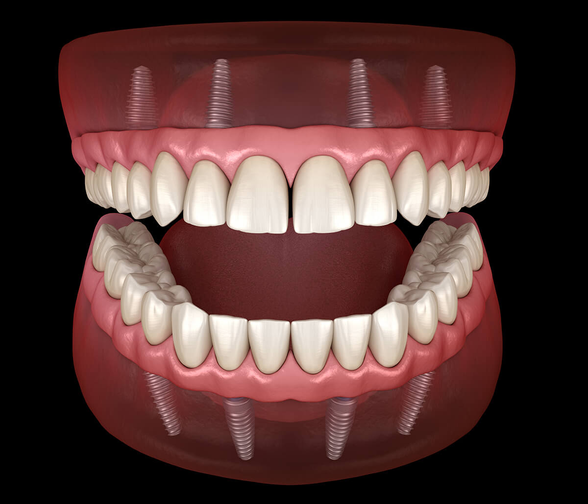 How Can All-On-4 Implants for Teeth Improve Oral Health?